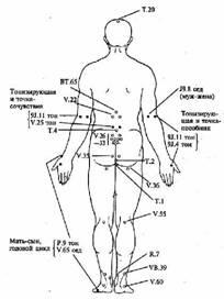 Пластырь от варикоза 38 fule vasculitis